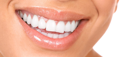 Incoraggiate autostima dei vostri figli con un apparecchio ortodontico